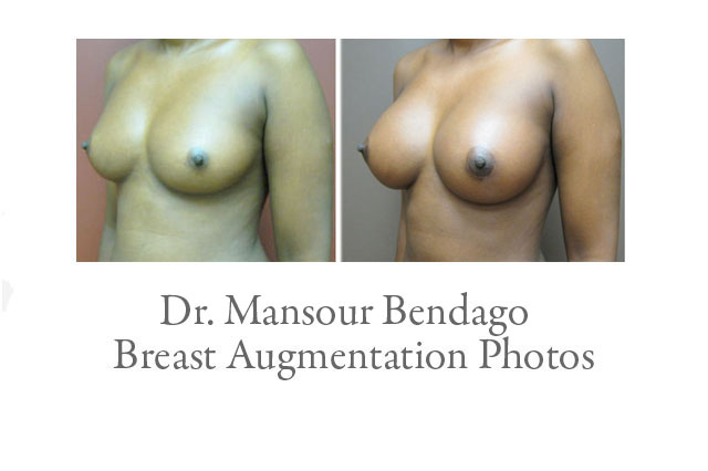Breast Augmentation Photos