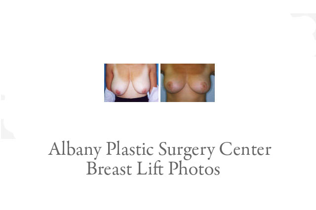 Breast Lift Photos