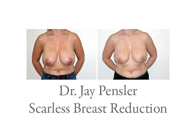 Scarless Breast Reduction Photos