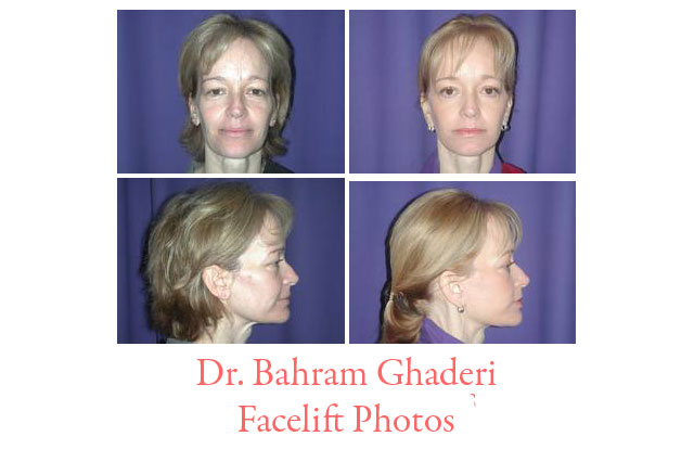 Facelift Photos